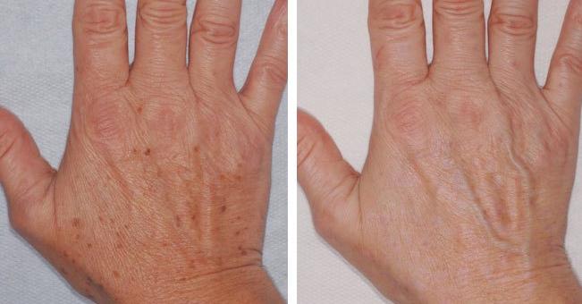 prevenzione macchie mani