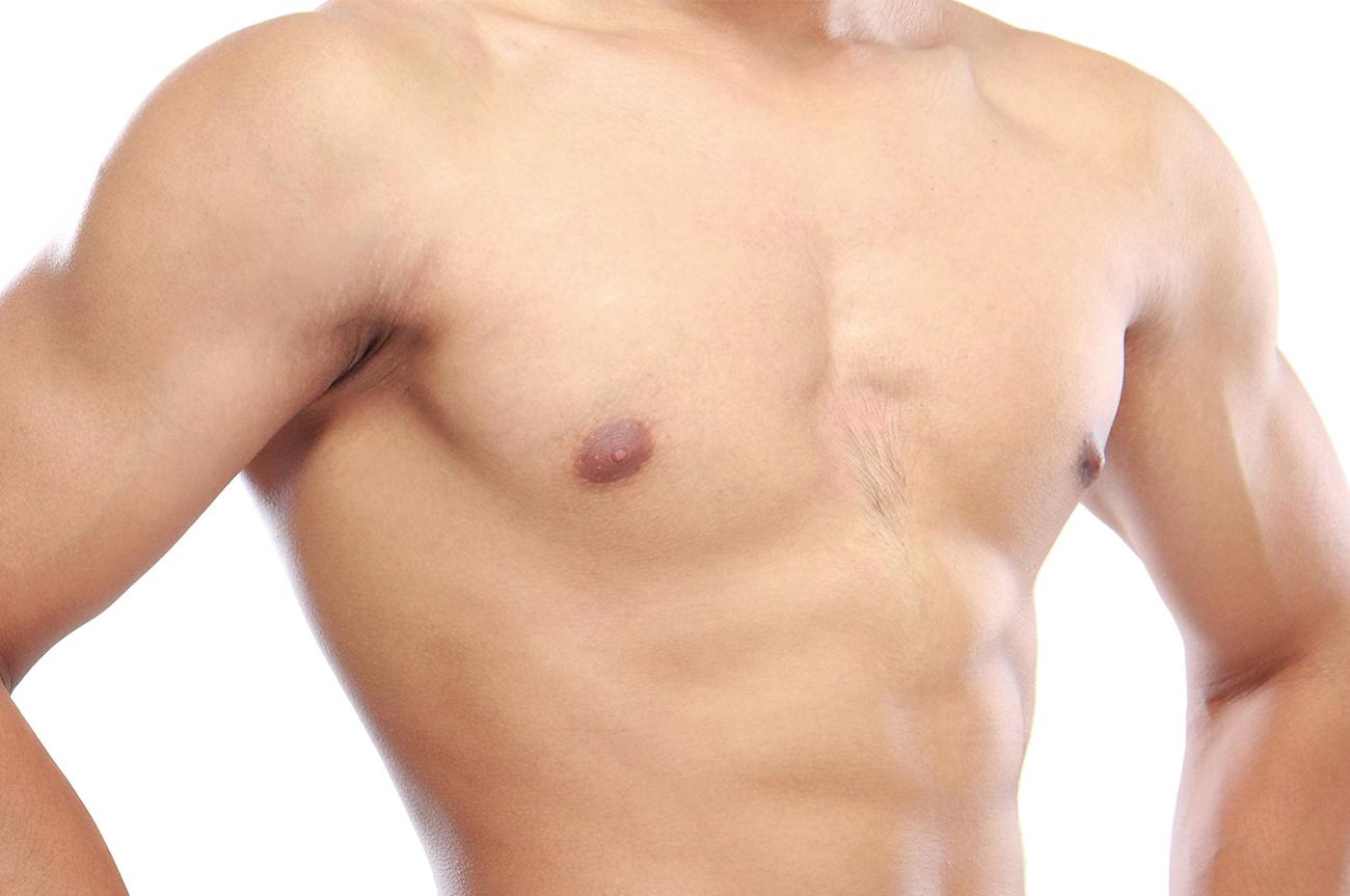 Ginecomastia, cicatrici dell'intervento