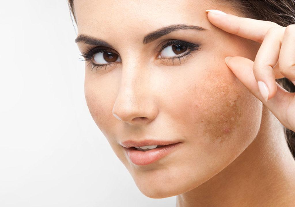 Iperpigmentazione cutanea