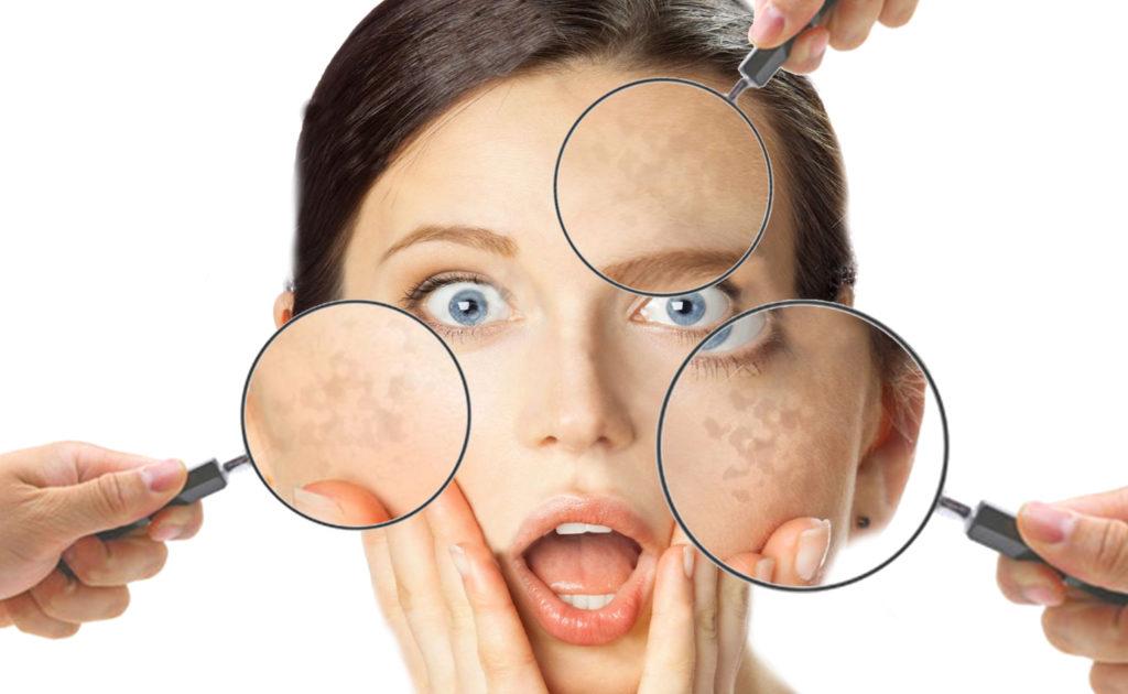 Macchie scure sulla pelle del viso
