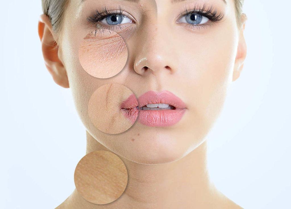 Alimenti che fanno bene alla pelle del viso