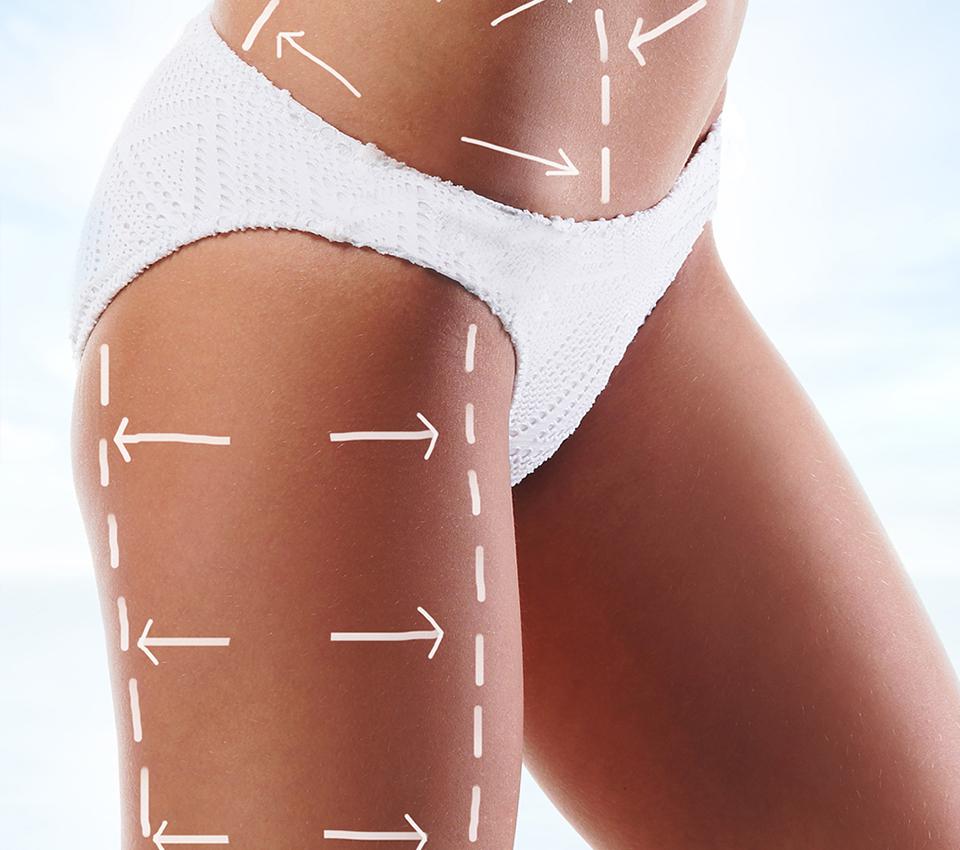 Risultati della liposuzione, cosa aspettarsi